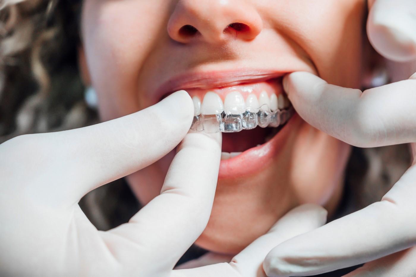 Cum funcționează aparatul dentar invizibil