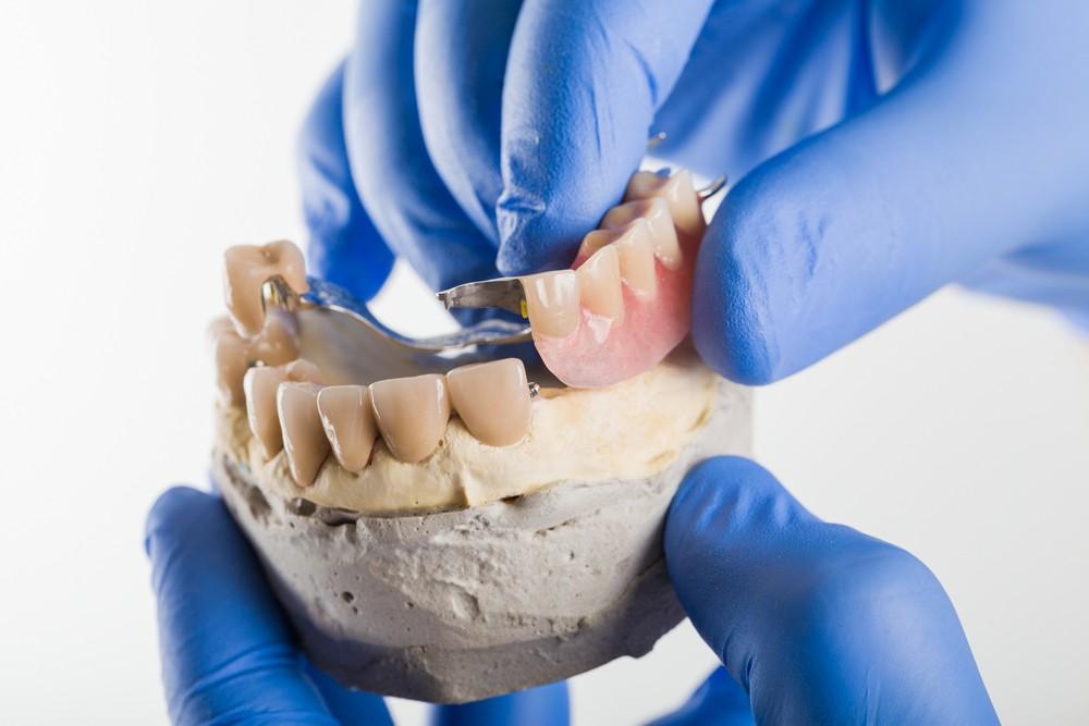 proteza scheletata