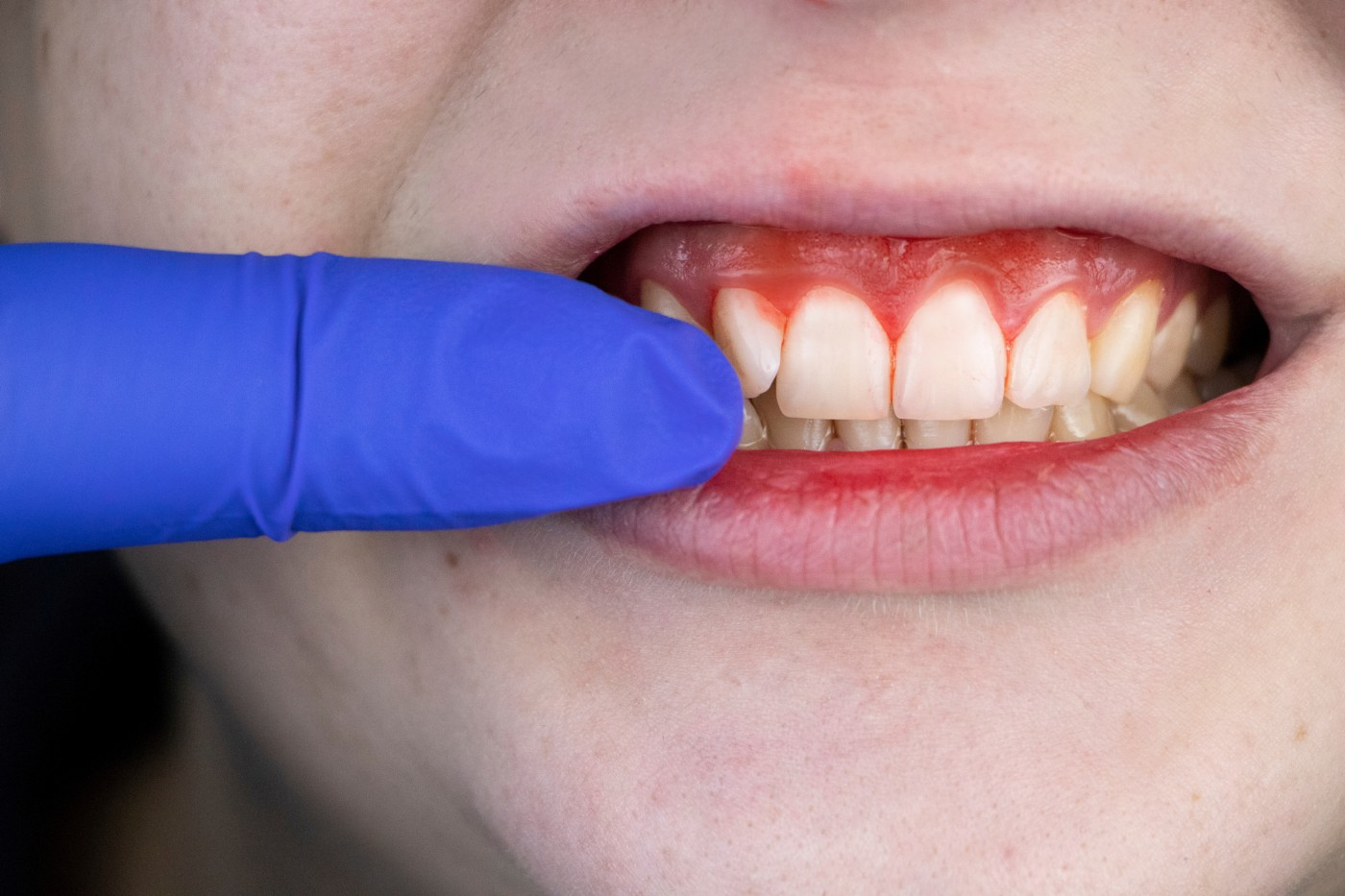 simptome parodontoza