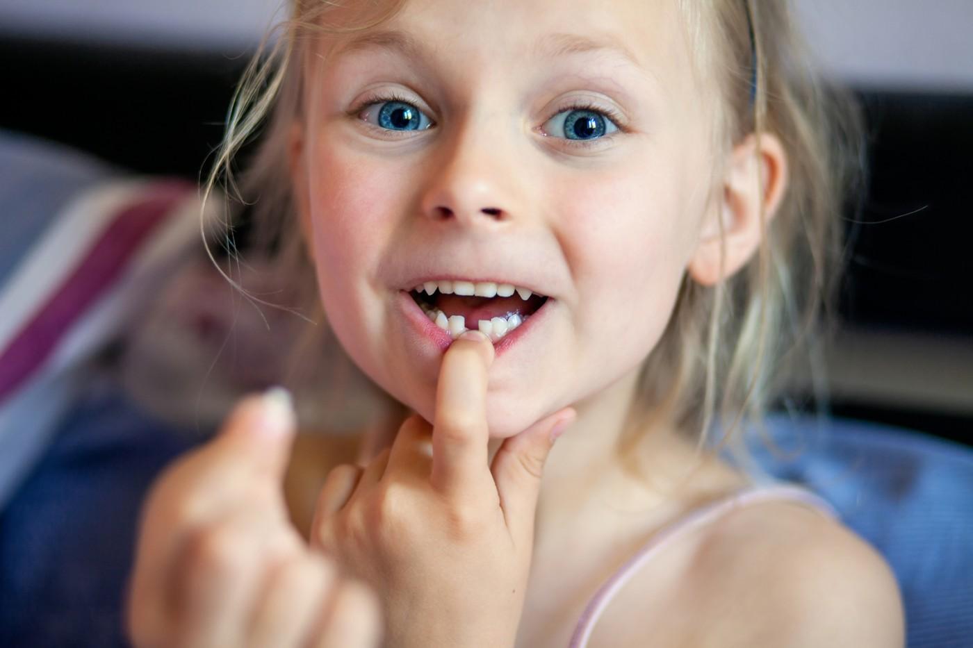 Dinții permanenți la copii