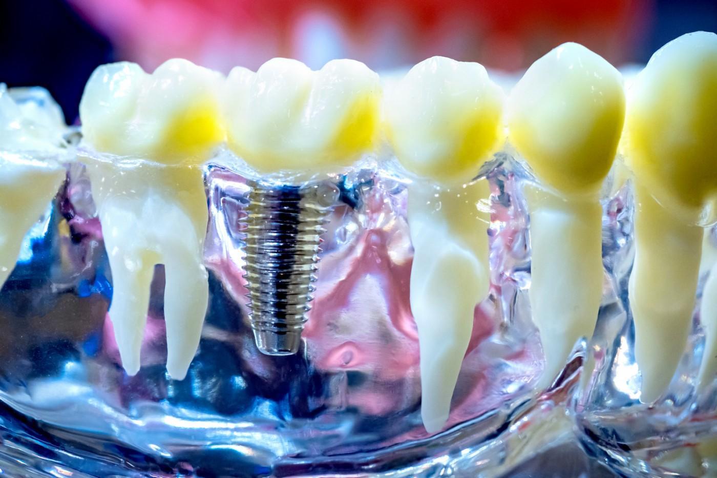 Implantul dentar – dezavantaje și avantaje