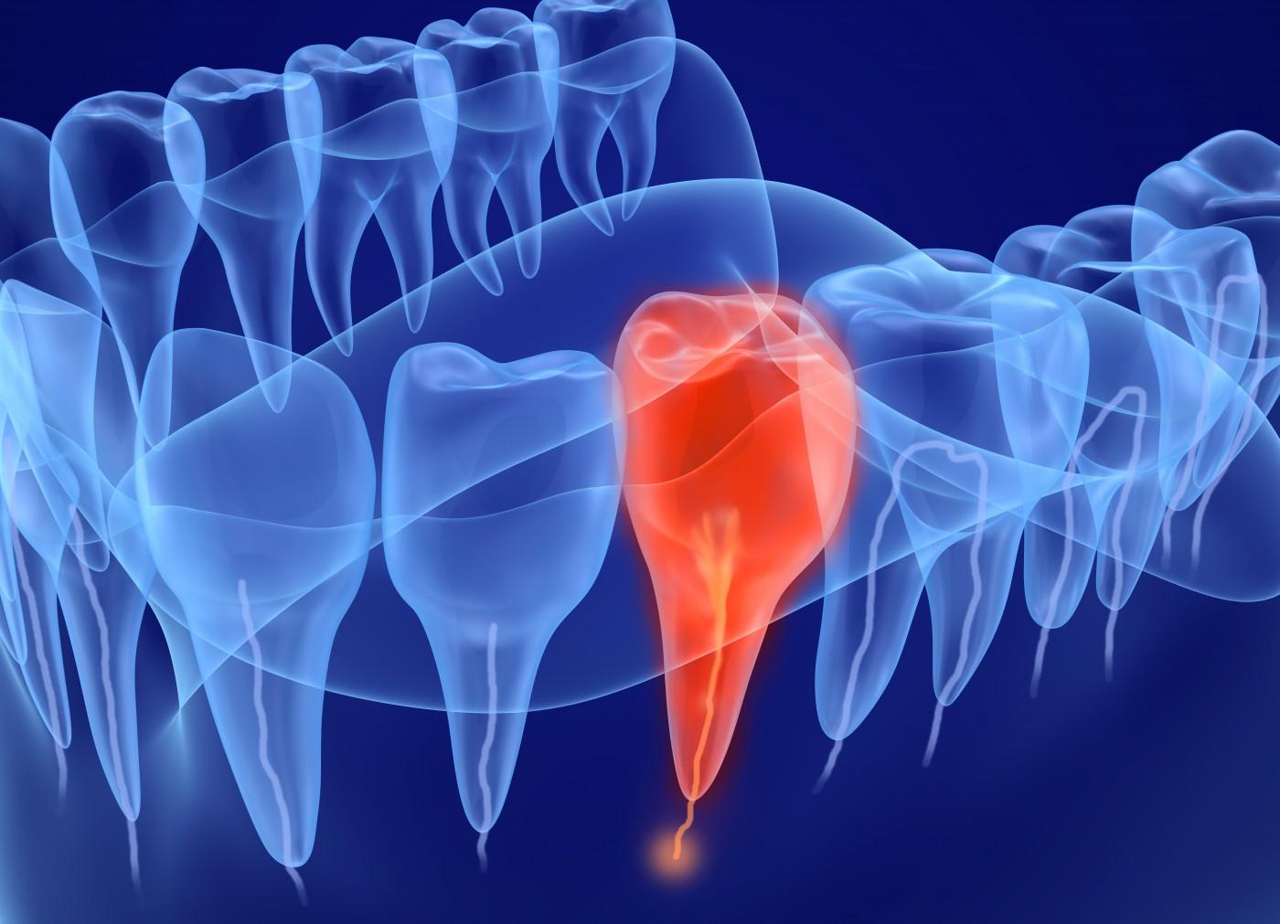 endodontie targoviste