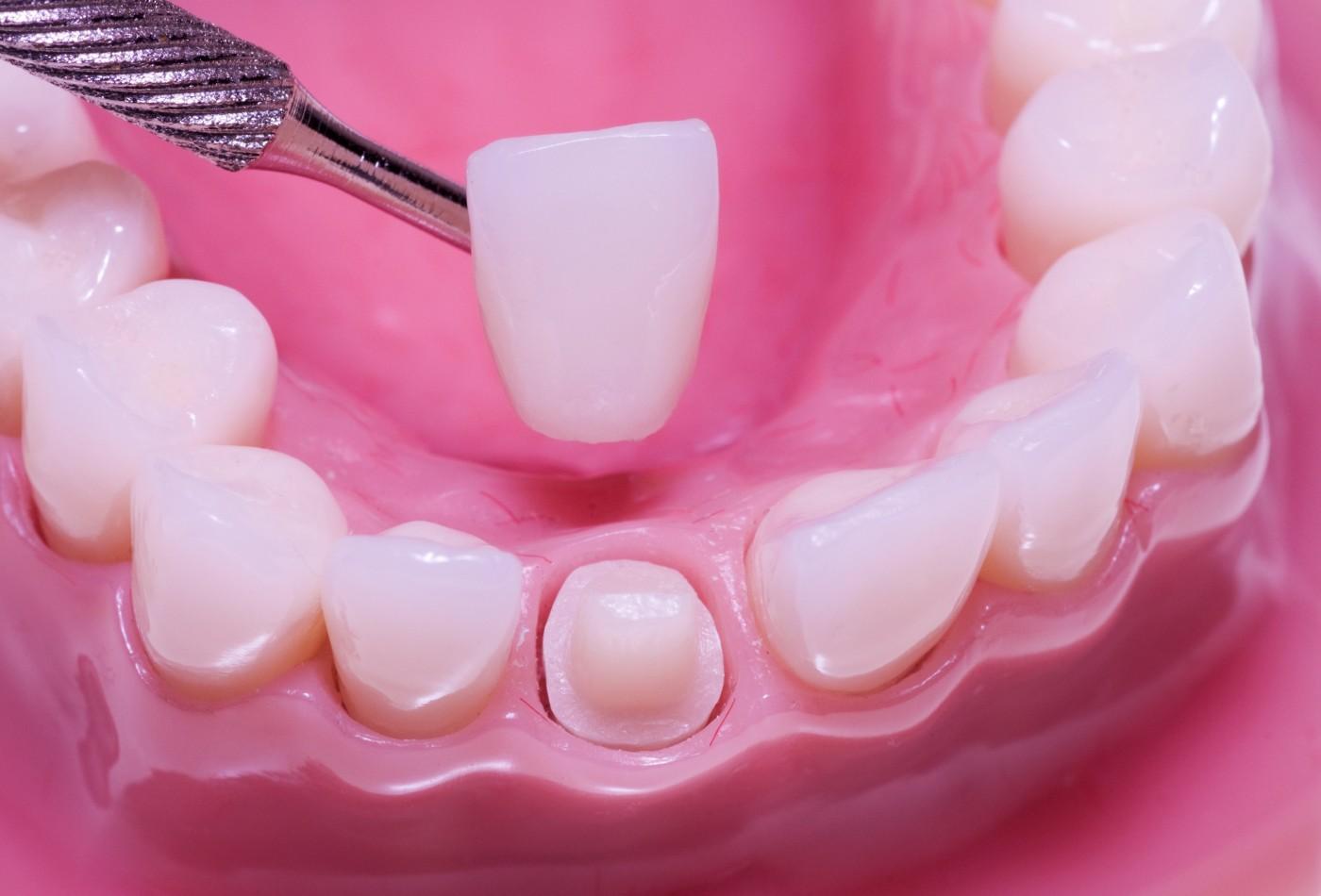 coroana dentara din zirconiu