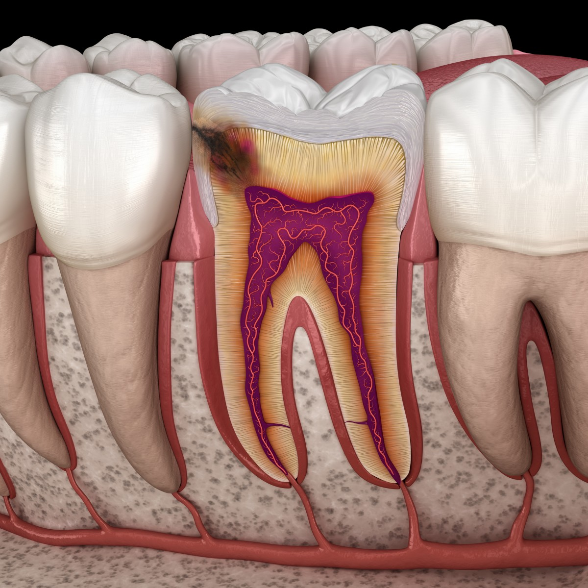 endodontie tragoviste