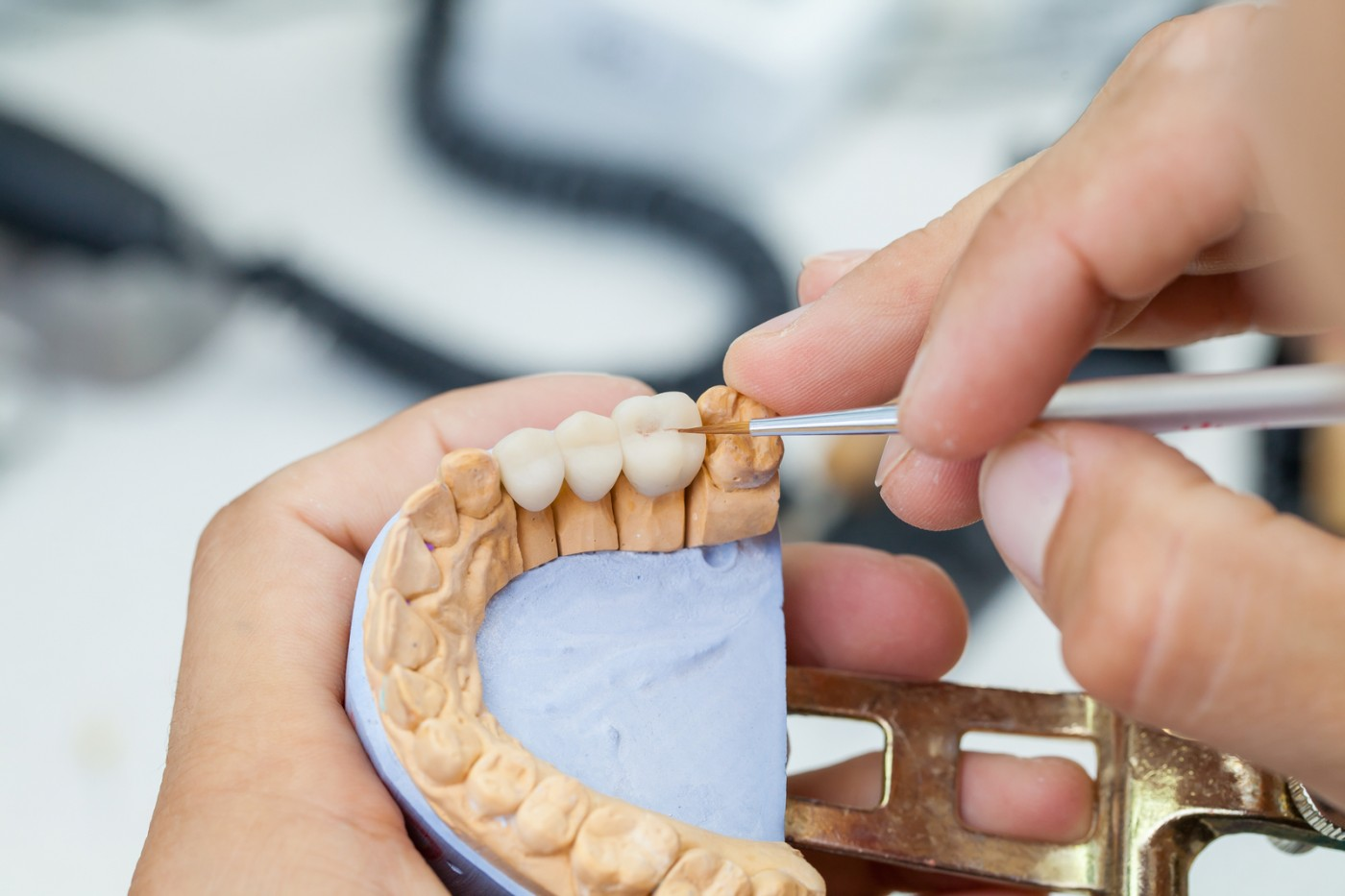 Punte dentară Târgoviște