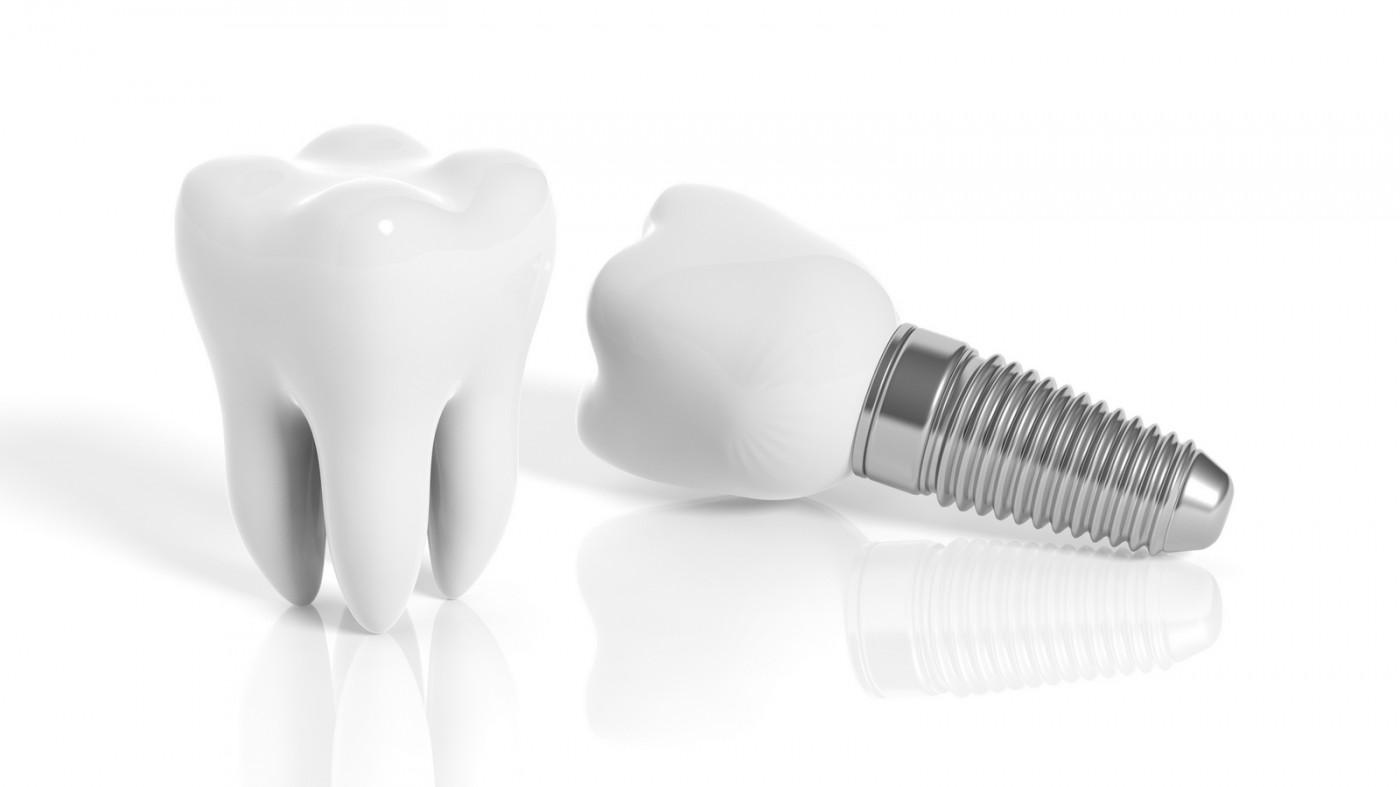 Implantul dentar necesită înlocuire?