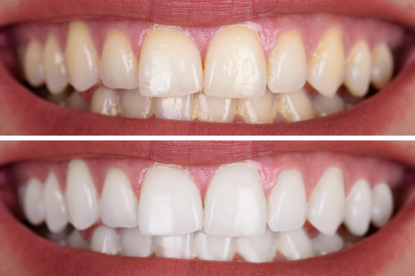 albire dentara targoviste