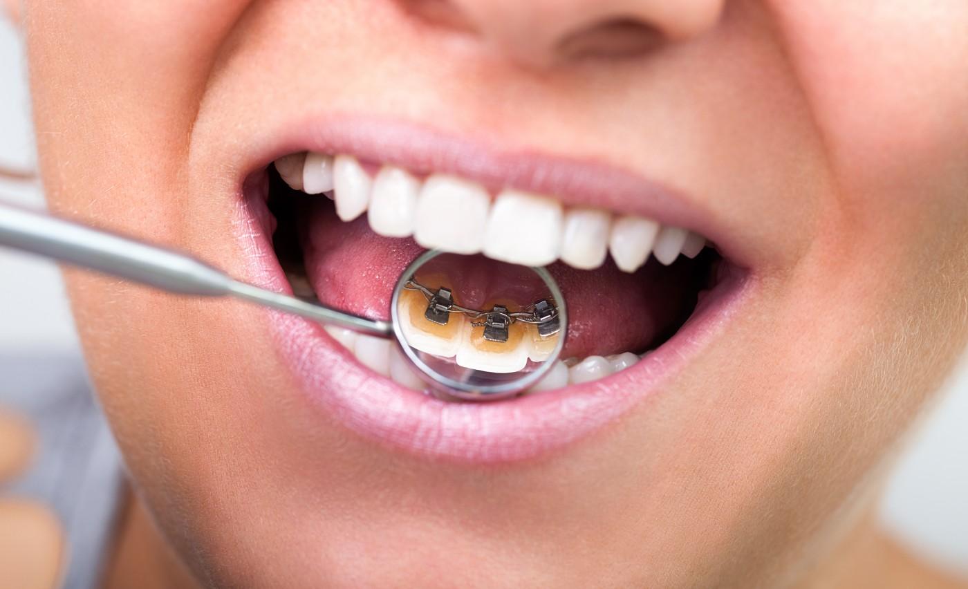 aparat dentar incognito