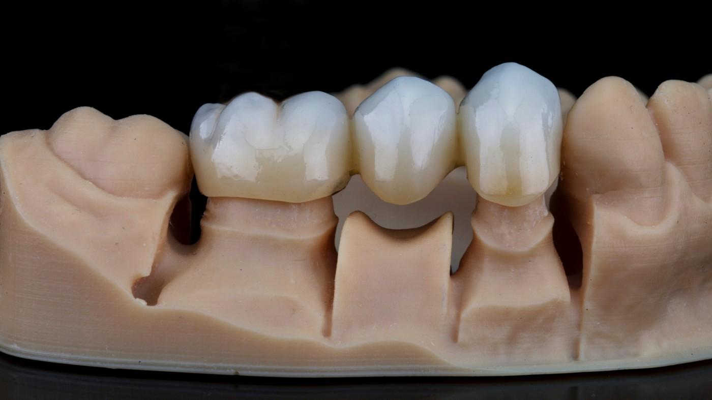 Ce este o punte dentară? Care sunt beneficiile unei punți dentare? Tipuri de punți dentare.