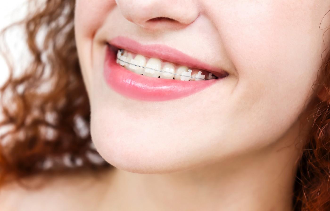 Cum funcționează un aparat dentar ceramic?
