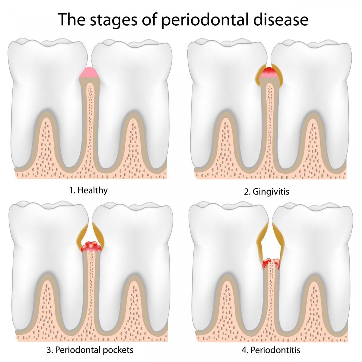parodontita avansata