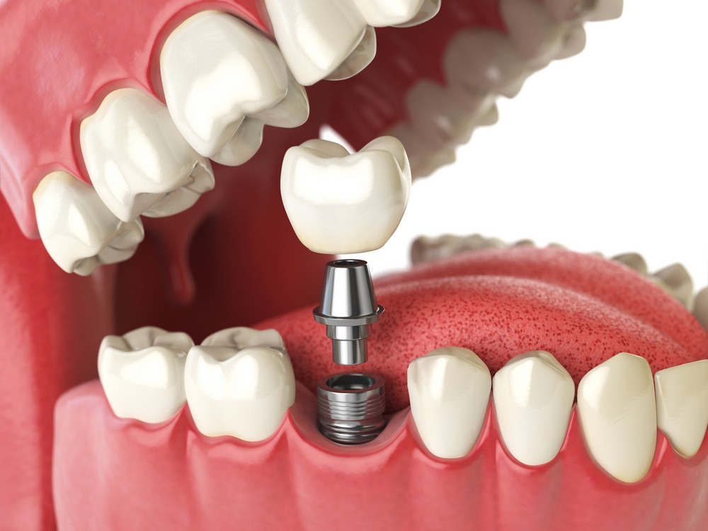 coroana dentara pe implant