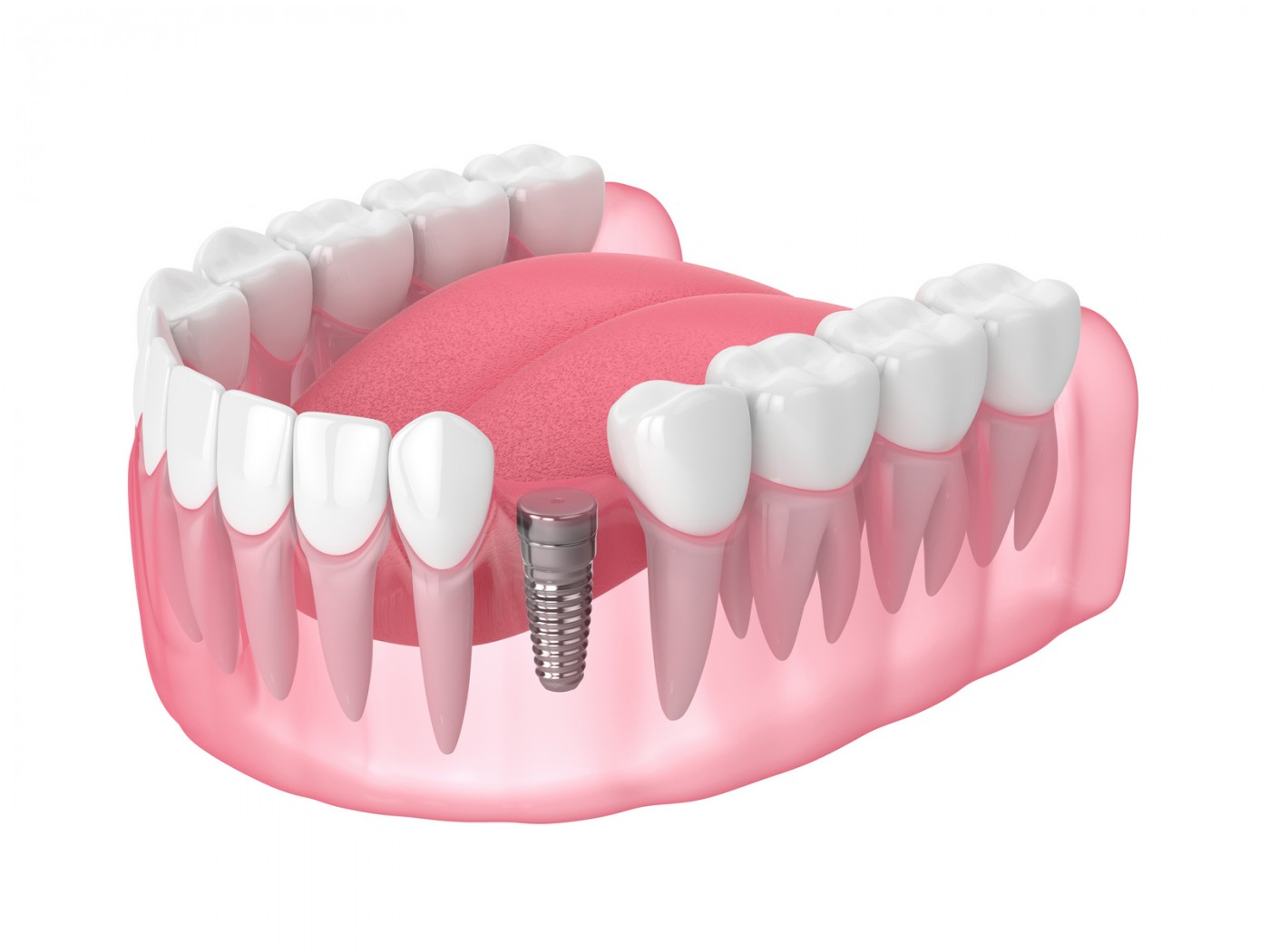 Implant dentar cu tehnologii avansate Targoviste