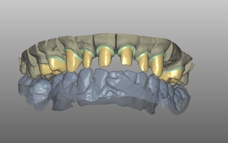 coroane dentare metalo-ceramice