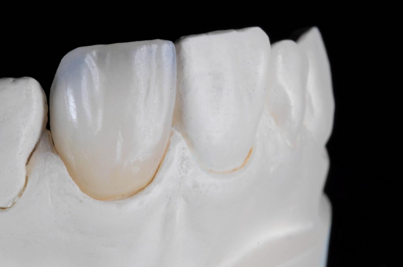 Coroană dentară Târgoviște