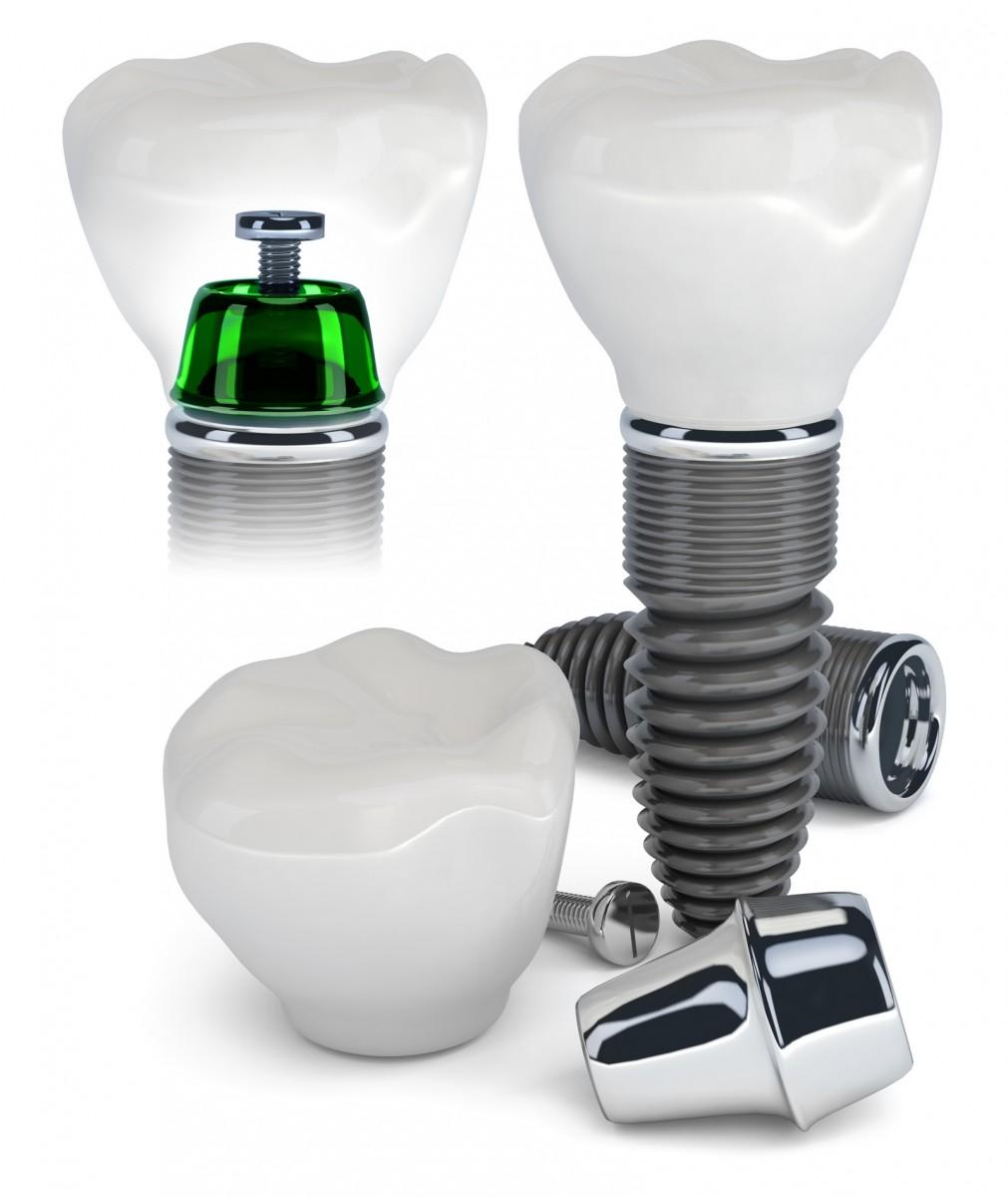Implant dentar Târgoviște