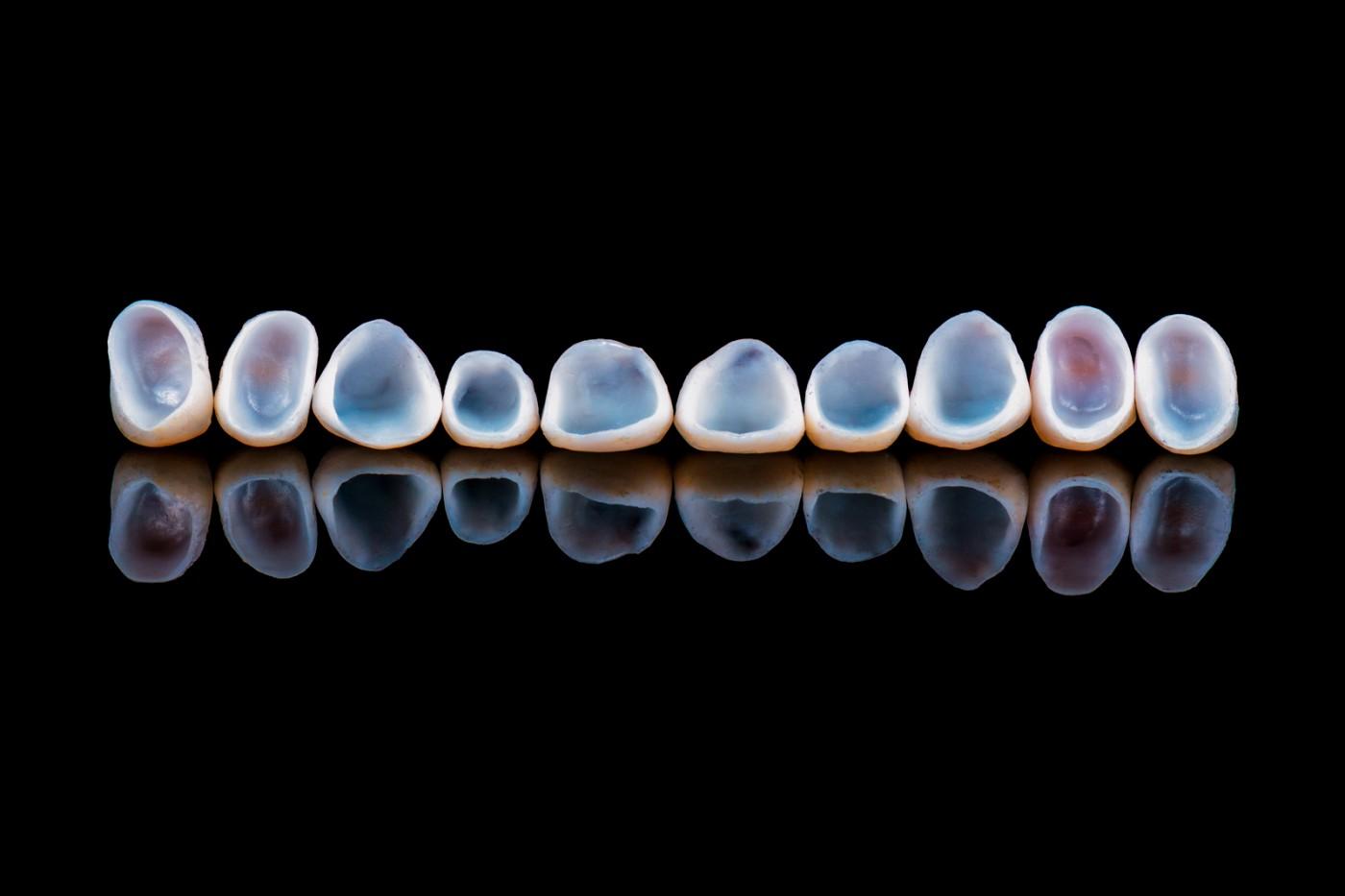 Beneficiile coroanei dentare