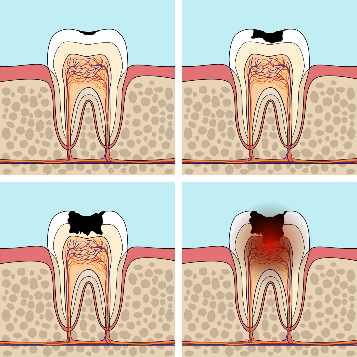 terapia cariilor dentare