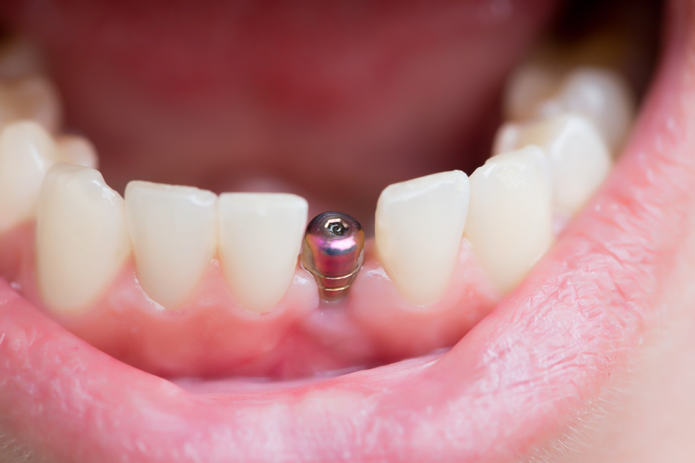 implant dentar targoviste