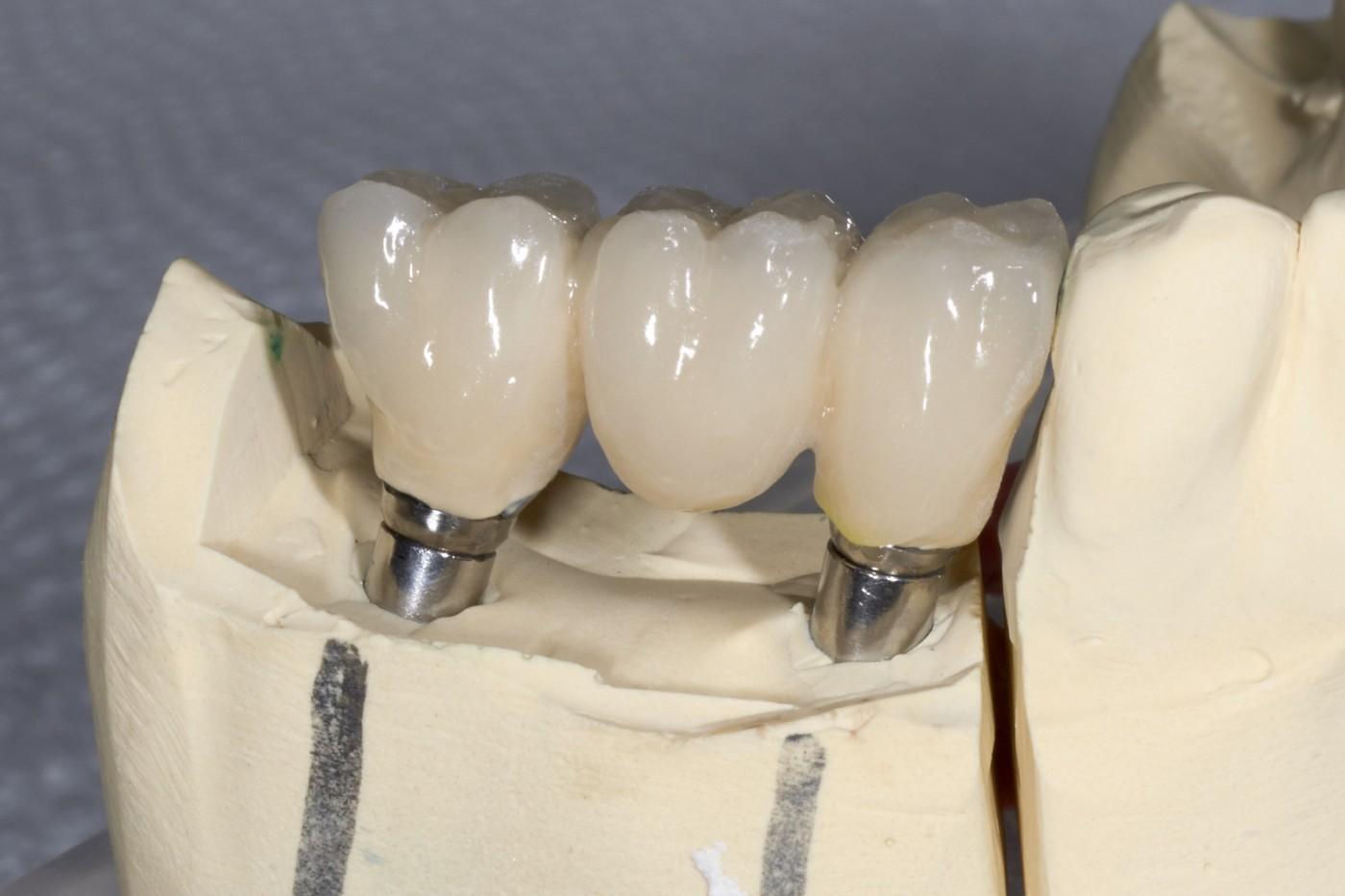 Punte dentară pe implanturi