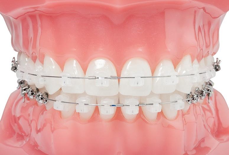 aparat dentar damon