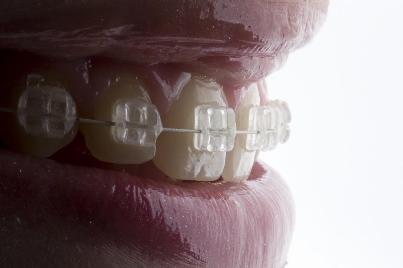 8 curiozități despre aparatul dentar Safir